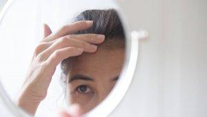 5 oorzaken van haaruitval bij vrouwen boven de 40